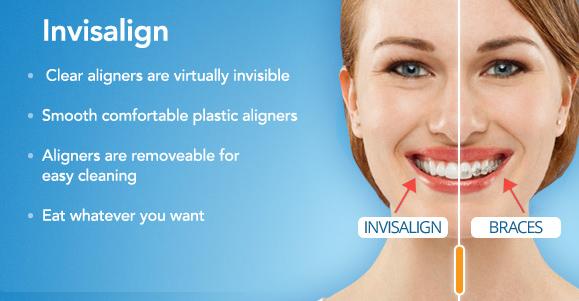 Invisalign Teeth Straightening in Witney, Oxfordshire ...